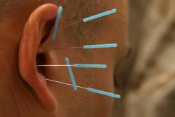 akupunktur artisdbunden depression